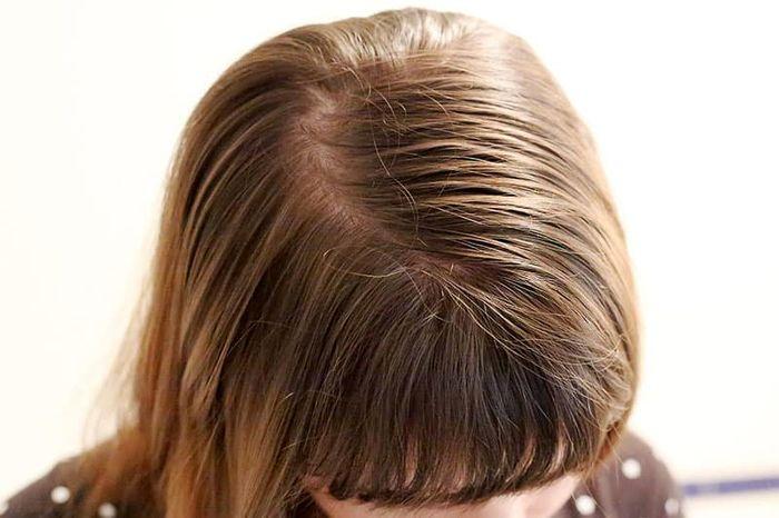 با این ۵ روش با موهای نازک و ضعیف خداحافظی کنید!