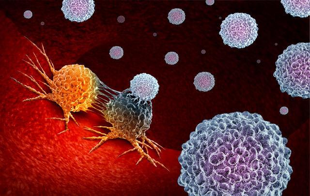 درمان سریع سرطان با این روش