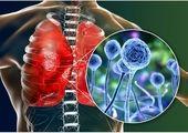 هشدار به بیماران کرونایی درباره عفونت قارچ سیاه!