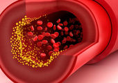 علائم اولیه سکته قلبی را بشناسید