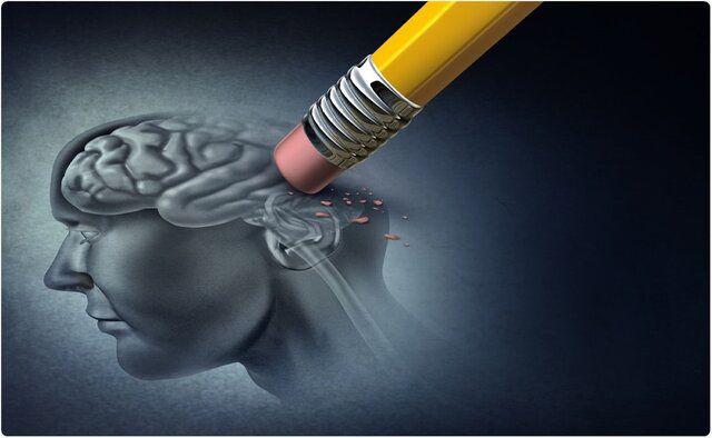 آلزایمر خطرناک اما قابل کنترل است